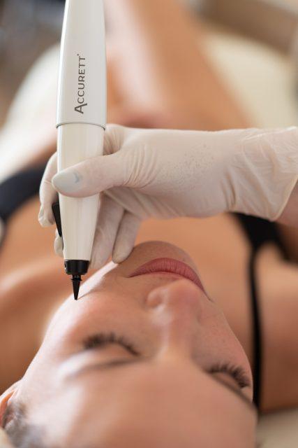 טיפול פיגמנטציה בעור ACCURETT 1