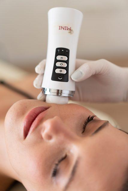 MINI RF   מכשיר מיצוק העור באמצעות גלי רדיו 1