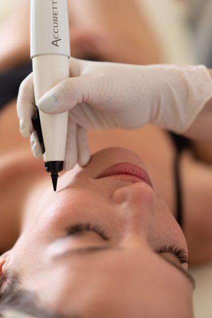 טיפול פיגמנטציה בעור ACCURETT 4