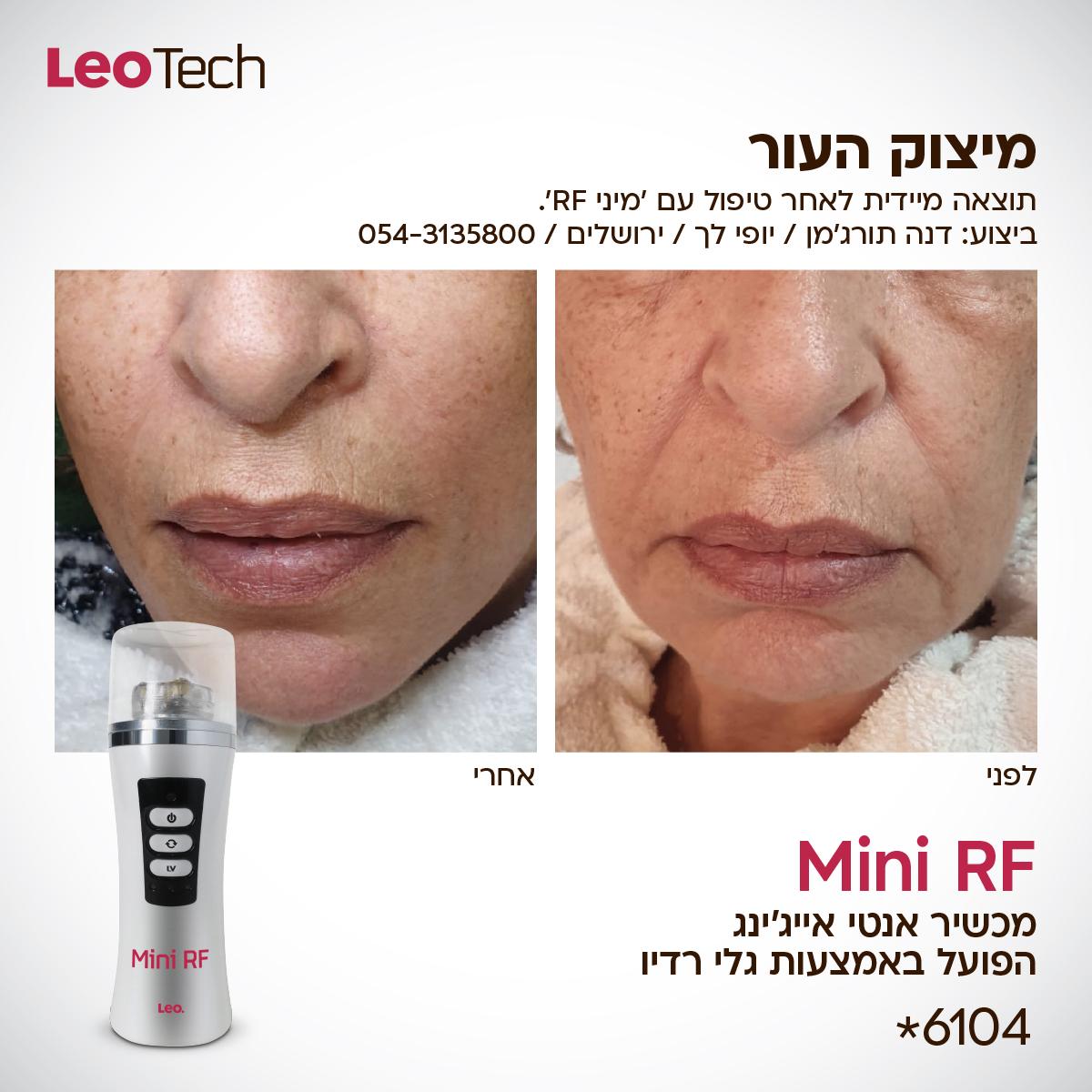 מכשיר למיצוק ומתיחת העור - לפני ואחרי